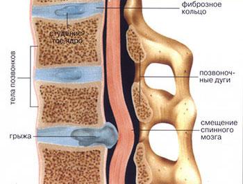 заболевания позвоночника грыжи