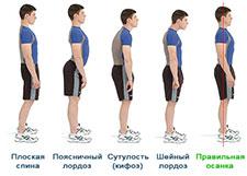 Физические упражнения для профилактики нарушений осанки